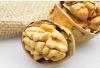 10大坚果食用禁忌:为了您的健康,请花2两分种看完