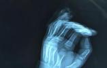 7岁男童玩校服裤腰带小指被整节扯断,医生提醒注意各类绳线