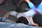 15岁少年遭砍伤