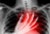 心绞痛服救心丸要舌下含服 躺着含药不易晕眩