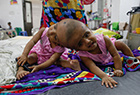 孟加拉国连头婴儿