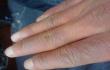 冷水洗,皮肤更耐寒 5个方法预防冻伤