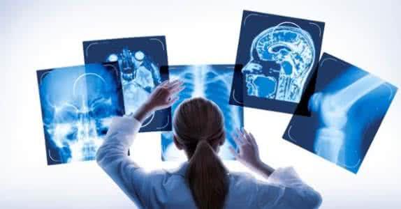 影像领域的医疗AI是最有机会的人工智能之一